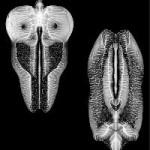 skull defekts